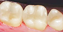 After Dental Inlay