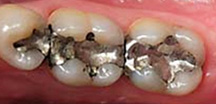 Before Dental Inlay