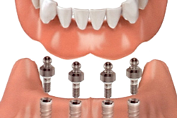 Dental Implant - Solutions for Missing Teeth