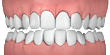 Invisalign - Designs For Dental Health