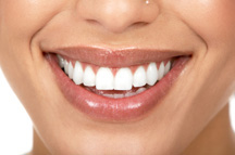 In-Office Whitening with Glamorous Results